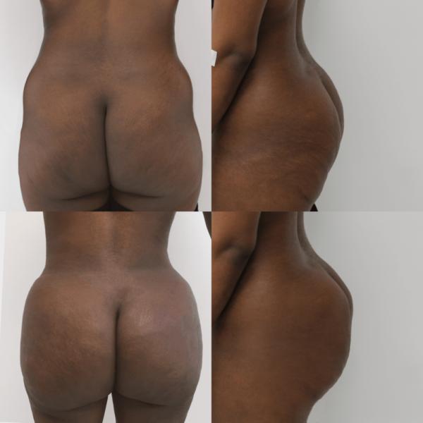 brazilian_butt_lift