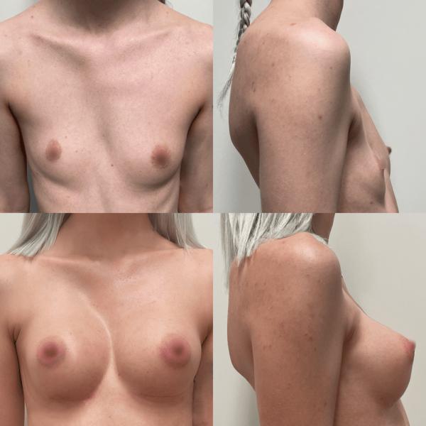 powiekszanie-piersi-101