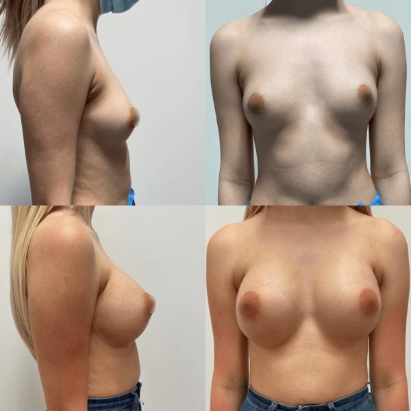 powiekszanie-piersi-103